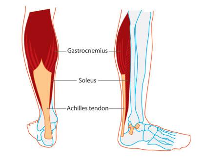 Calf Pain Tight Calf Muscles In Runners Body Organics
