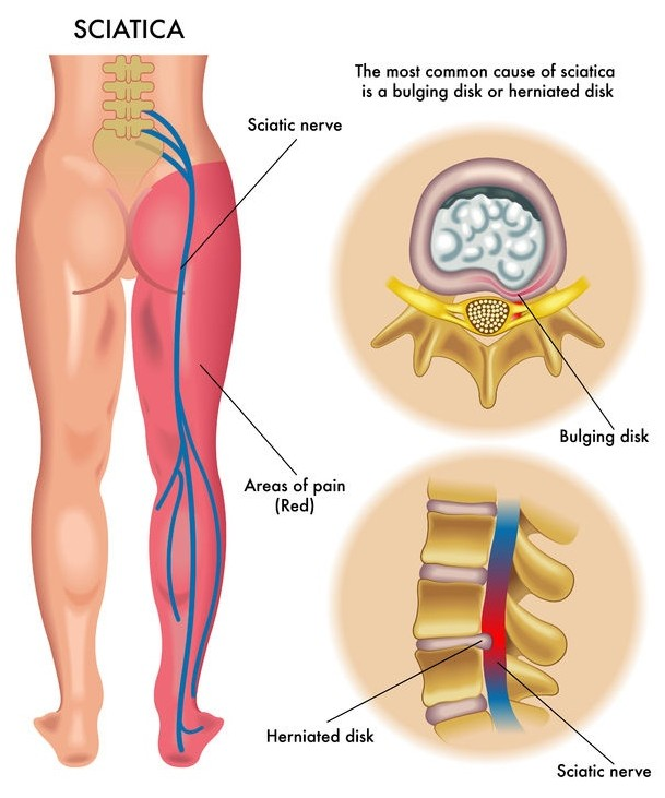 Sciatica Symptoms from Nerve Pain
