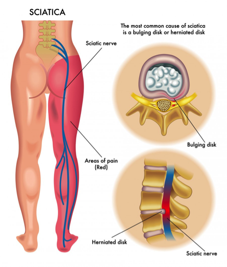 common causes of sciatic nerve pain are bulging disk or herniated disk
