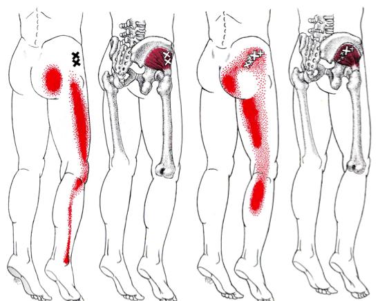 Sciatic nerve pain | Causes, symptoms and treatment