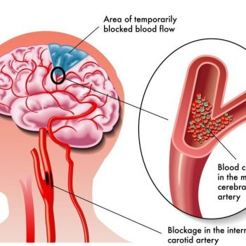 image of brain and stroke